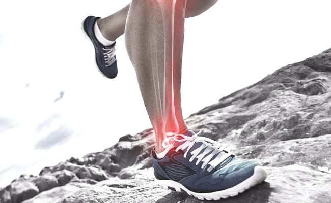 Image of a runner's leg with shin splint pain highlighted red